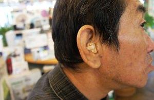 補聴器の電池